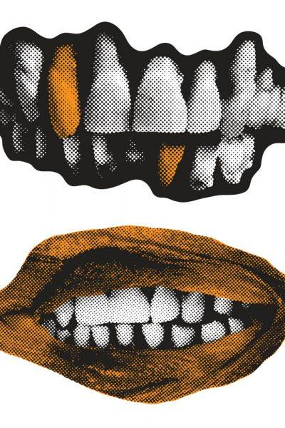 Teeth stuff